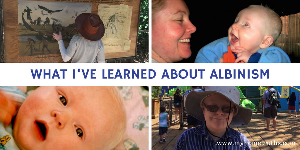 What I've learned about albinism through my son