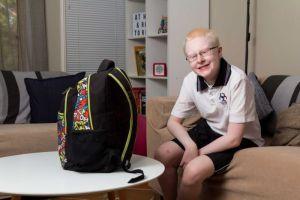 ABC Albinism Article Photo - www.positivespecialneedsparenting.com