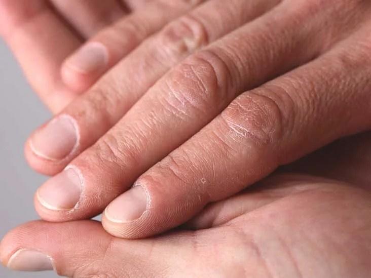 Warts on hands hpv virus Wart virus hands,