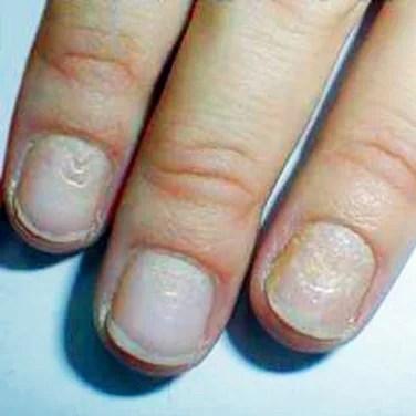 In tiny fingernails dents Ridges in