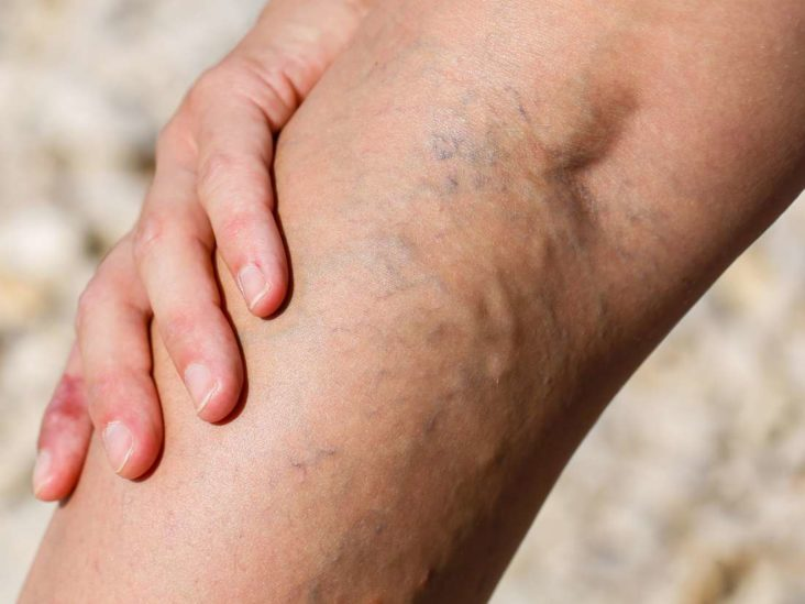 10 Home Remedies For Varicose Veins