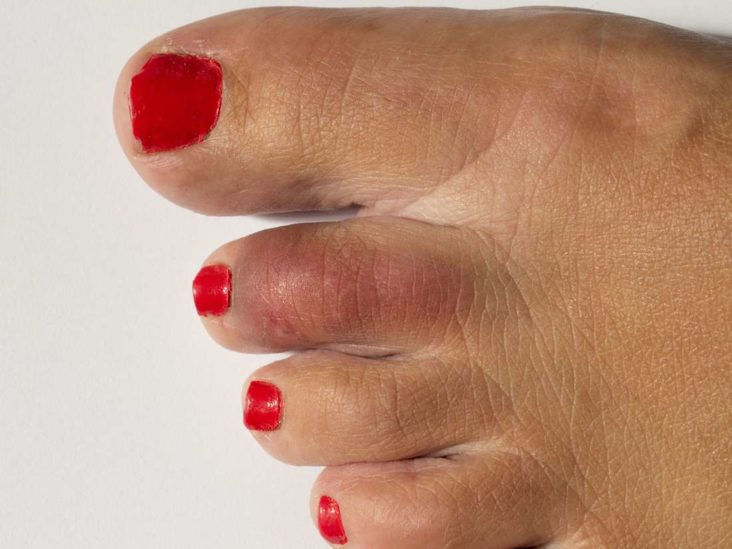 Second Toe Pain Causes And How To Get Relief