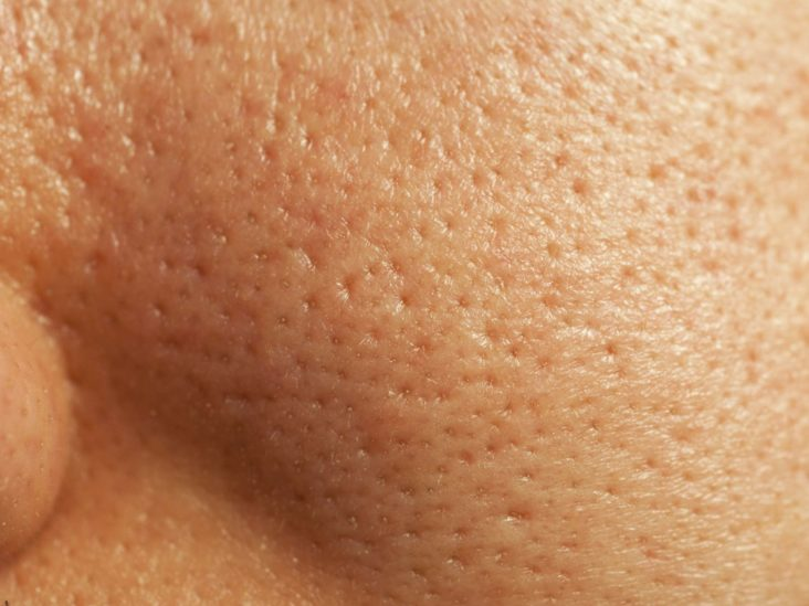 Whiteheads Home Remedies And Other Self Care Tips