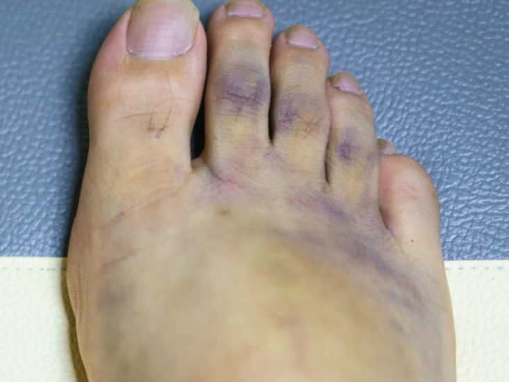 Diabetic Foot Problems Symptoms Treatment And Foot Care