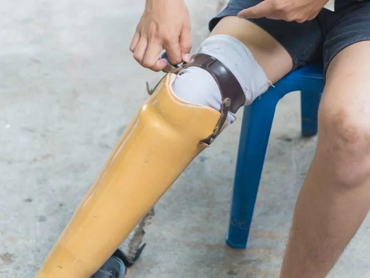 Diabetes Leg Pain Treatments And Home Remedies