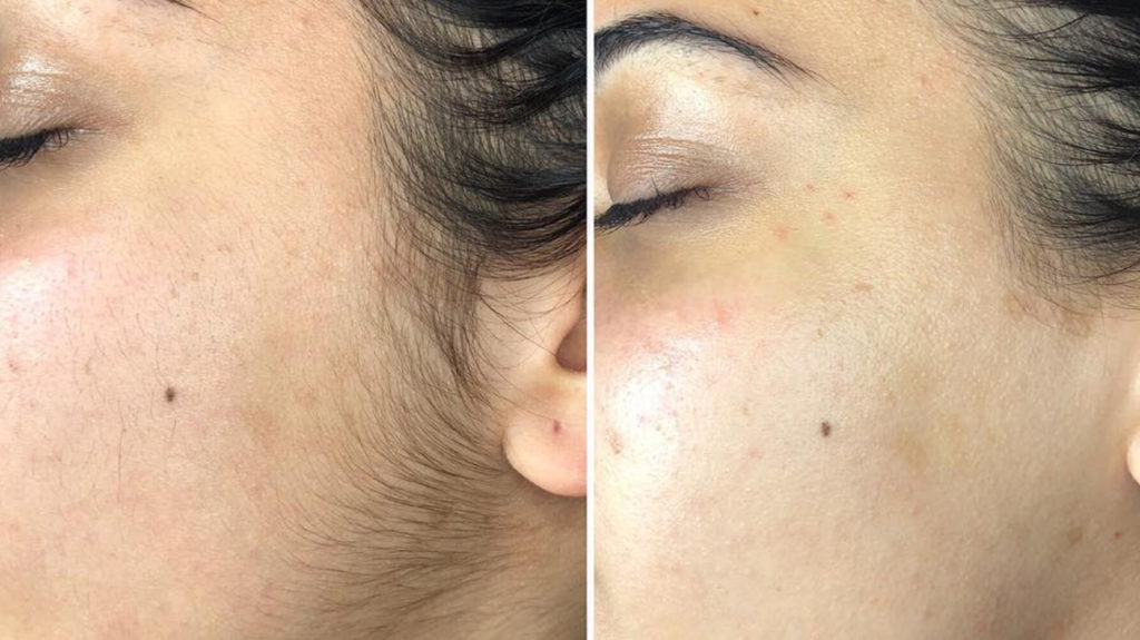 Dermaplaning: Efficacy, Side Effects, and More