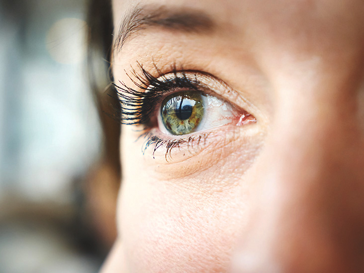 MS Eye Twitch: Causes, Treatment, and Outlook