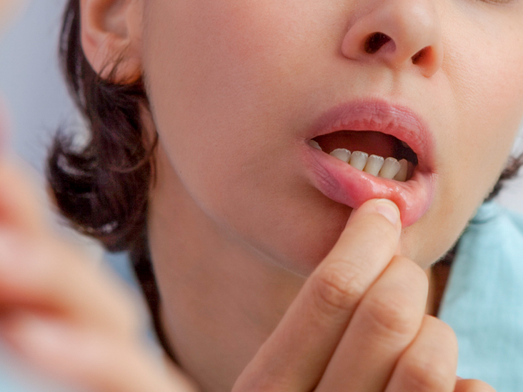Canker Sore on Tonsil: Symptoms, Causes, Treatment, Home Remedies