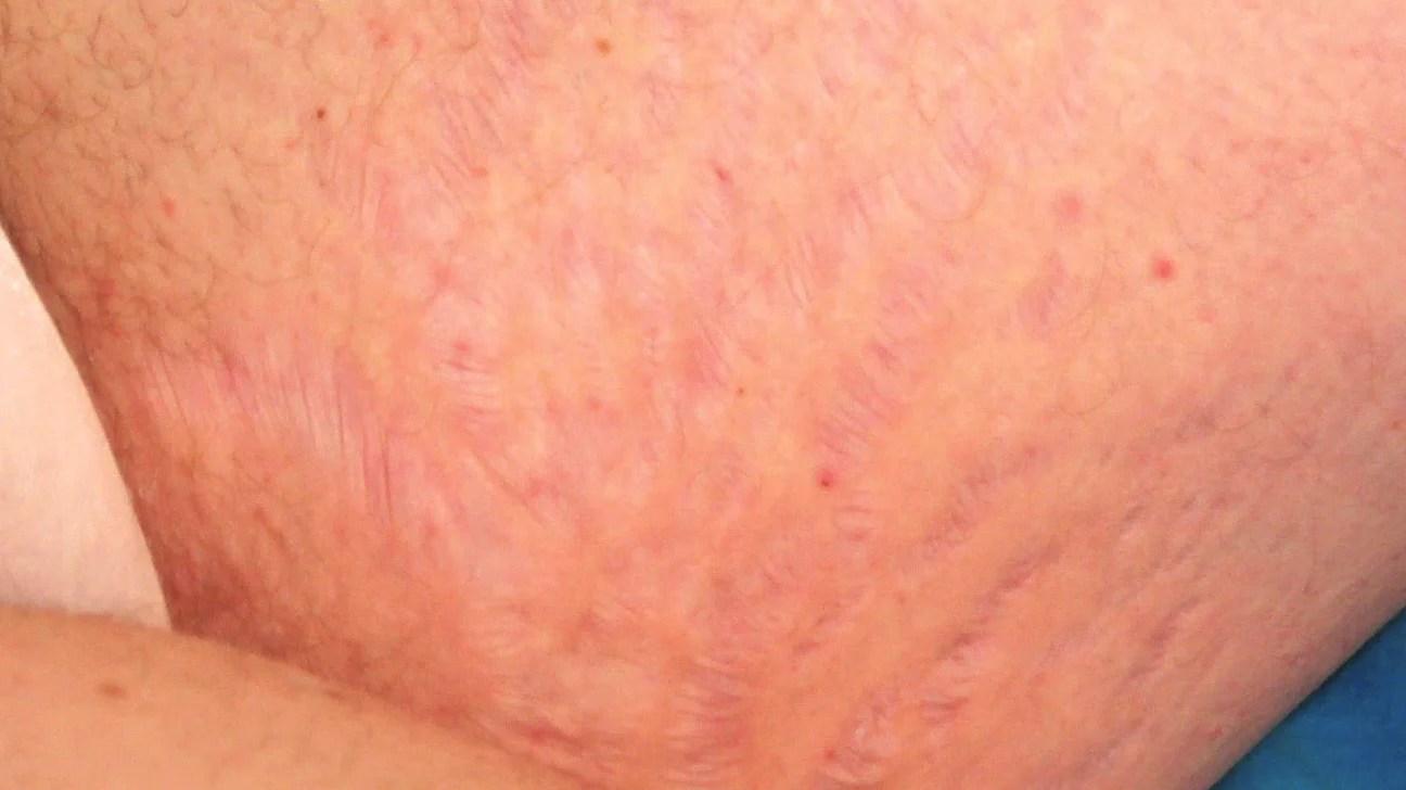 Breasts gallery Nude Photos 96