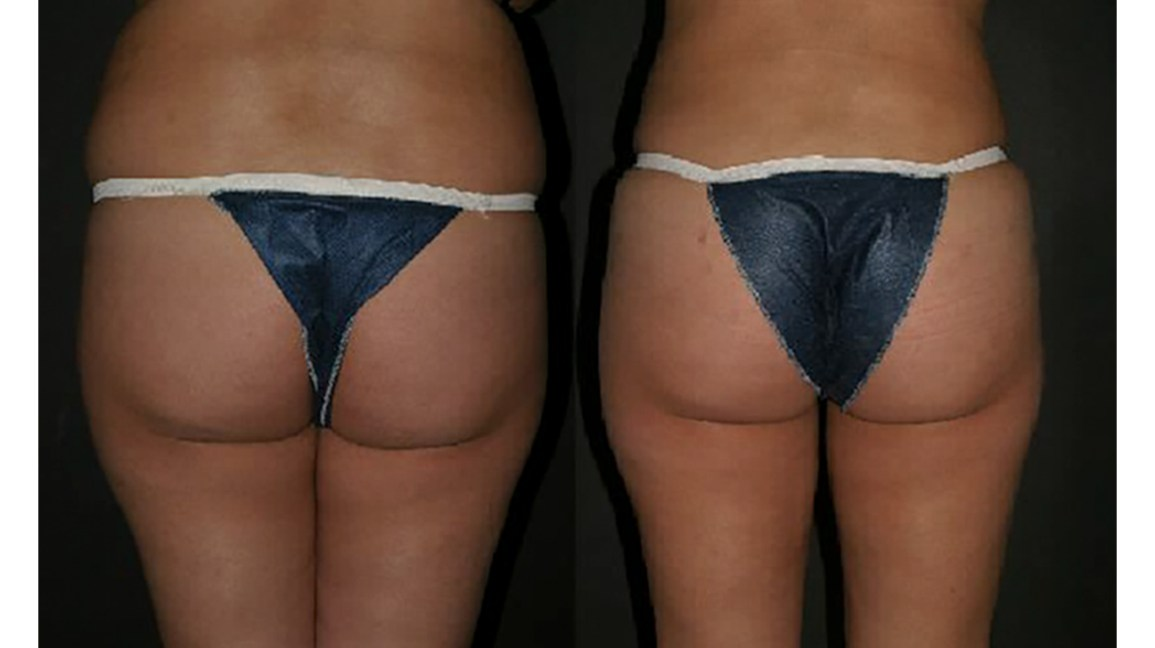 Butt Implants: Types, Risks, Costs, and Pictures