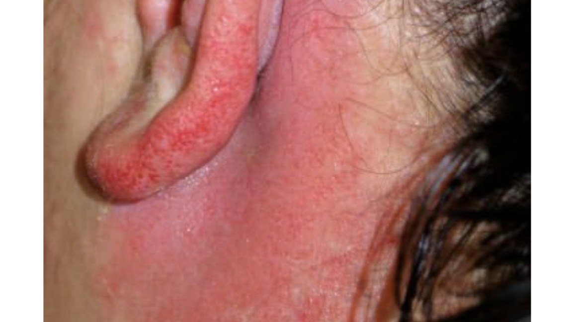 Rash Behind Ear: Causes, Symptoms, and Treatments