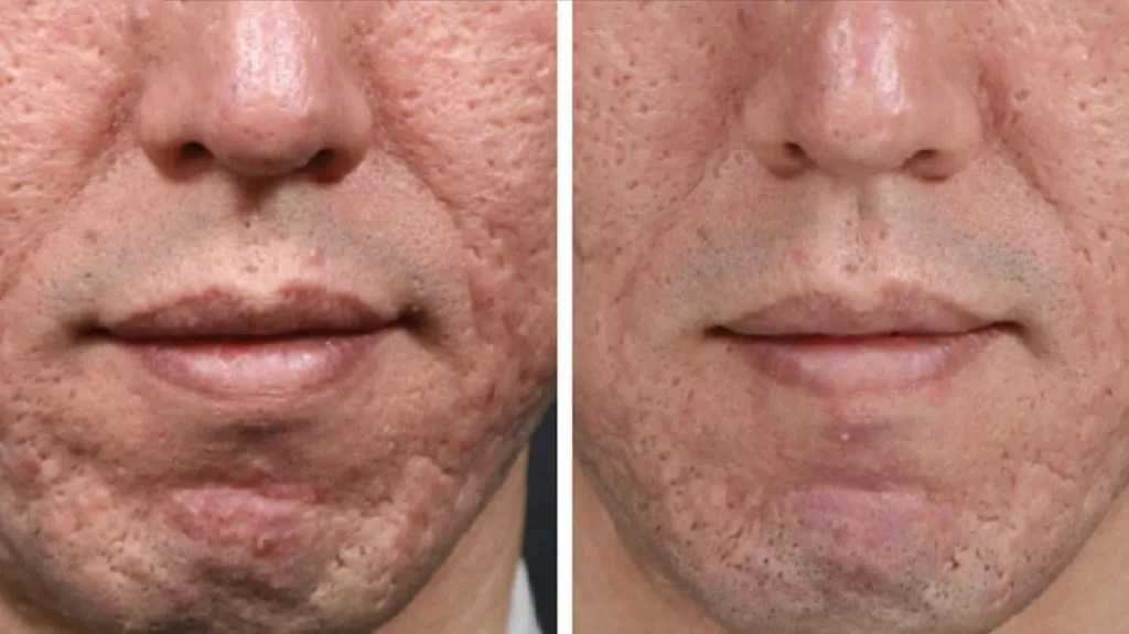 Microneedling for Acne Scars: Effectiveness, Side Effects, and Costs