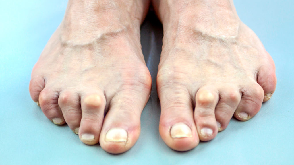 Rheumatoid Arthritis in the Feet: What to Know
