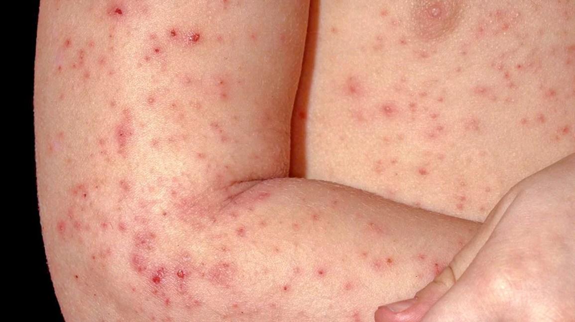 Follicular Eczema: Symptoms, Treatment, and Prevention