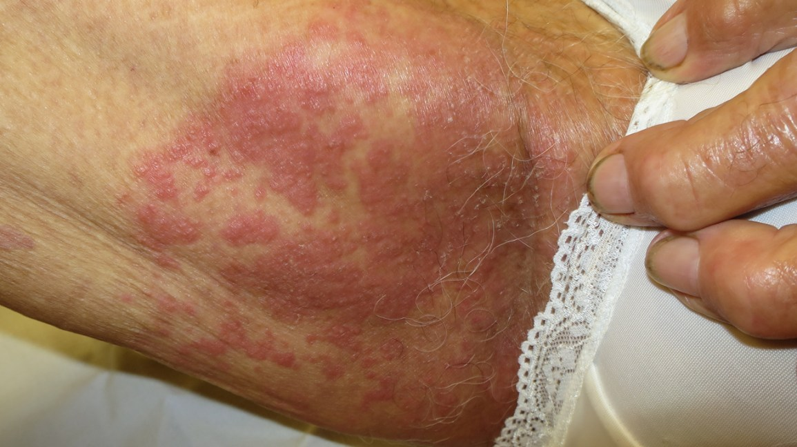 hpv skin rash treatment detox is a myth