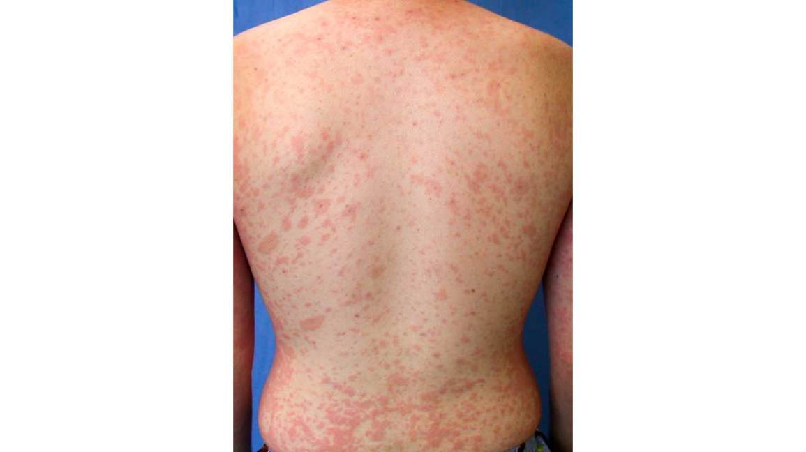 Red Spots On Skin Causes Treatments And More