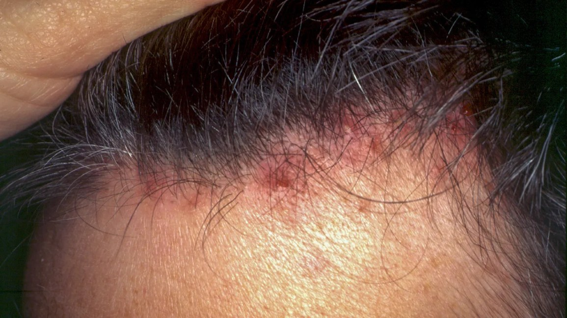 Folliculitis Scalp: Symptoms, Pictures, Shampoos, and Other