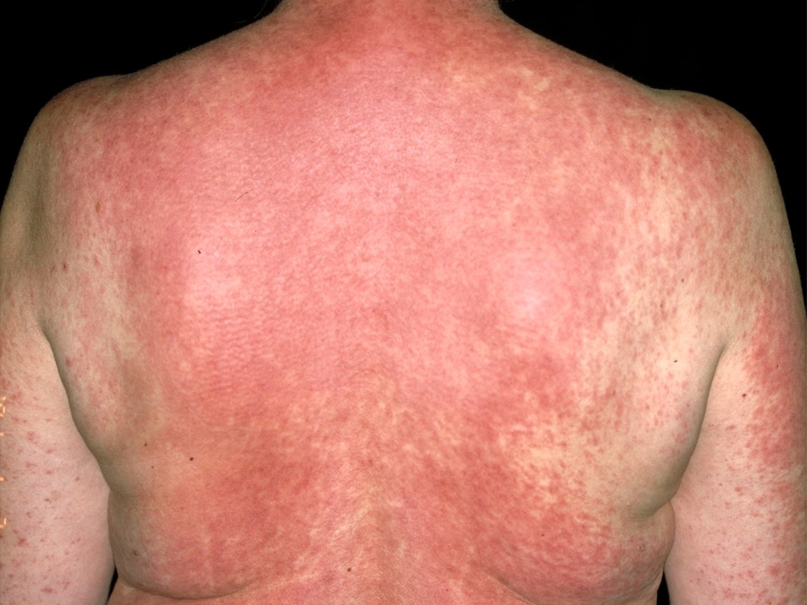Drug Rash and Eruption: Symptoms, Pictures, Causes, and