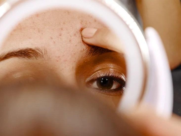 Manuka Honey for Acne: Does It Work?