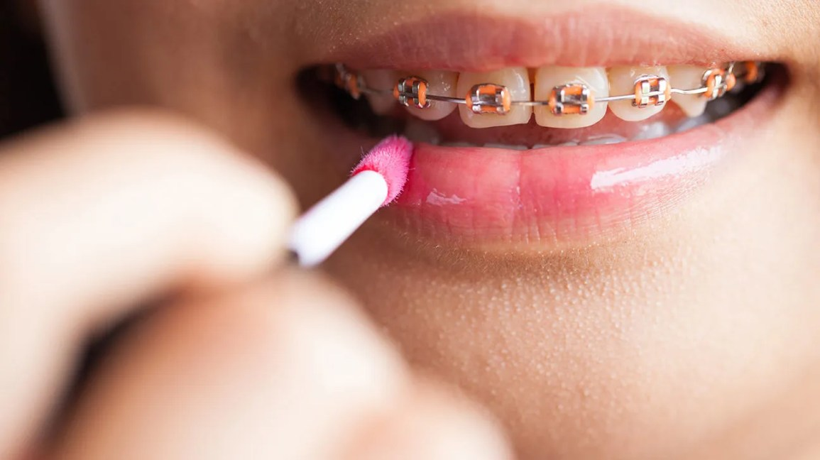 Braces Colors What Colors Are Available And How To Choose
