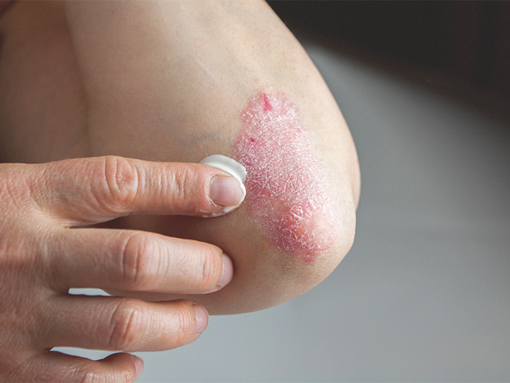 how much does psoriasis medication cost)