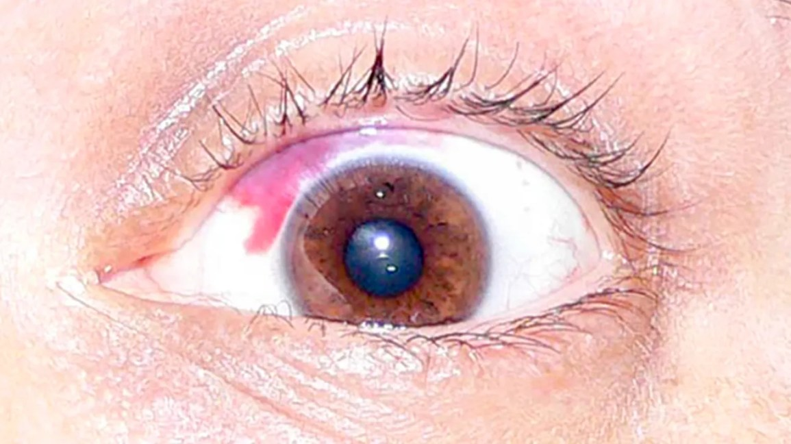 Red Spot on Your Eye: When to See a Doctor, Causes, Treatment & More