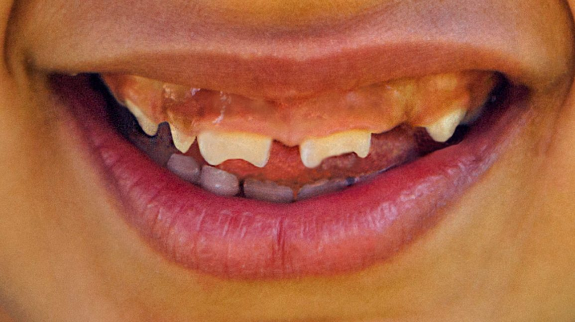 Hutchinson Teeth: Pictures, Causes, Treatment, Prevention