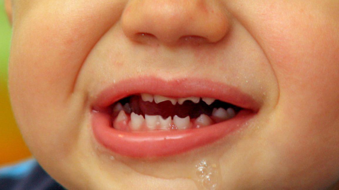 شکل دندان تغییر میکند