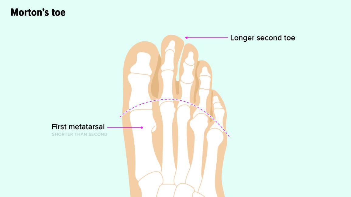 Illustration shows the first metatarsal, a bone in the foot, as shorter than the second metatarsal, causing the second toe to look longer than the first, big toe.