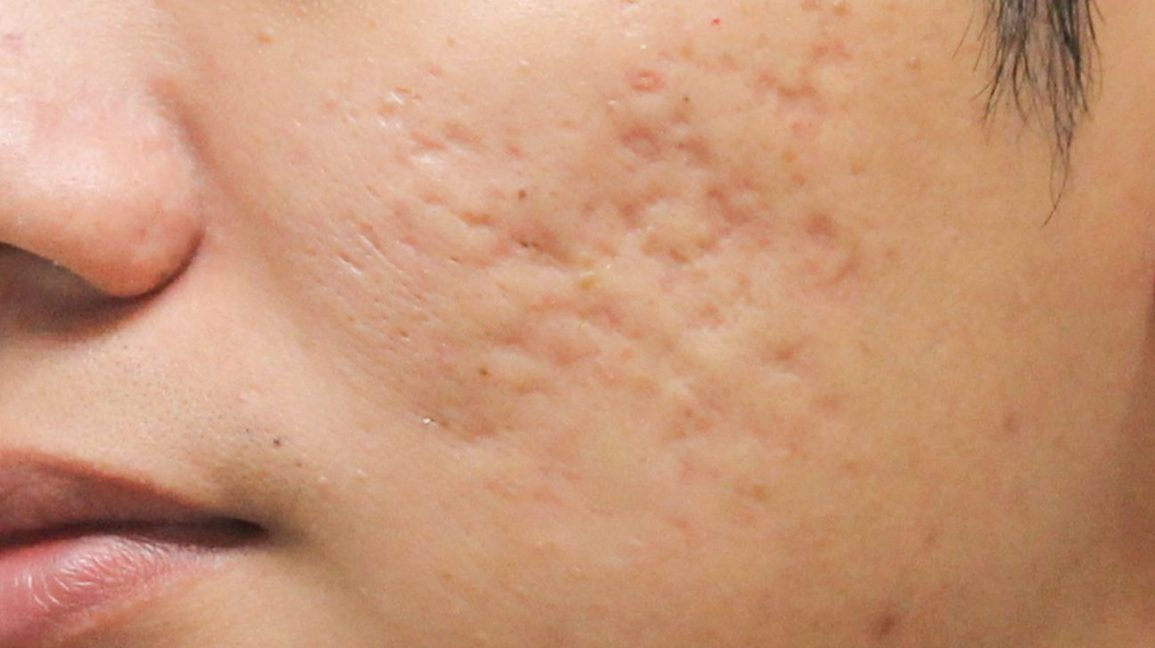 acne scars on cheeks