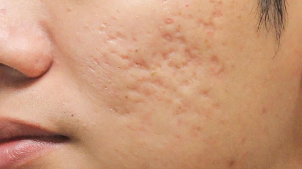 Resultado de imagen de acne marks
