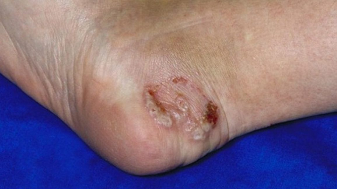Athlete S Foot Blisters Treatment Prevention Pictures And More