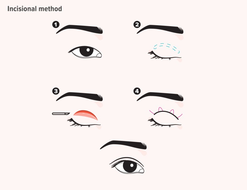Double Eyelid: Surgical & Nonsurgical Options, Pictures, Cost, More