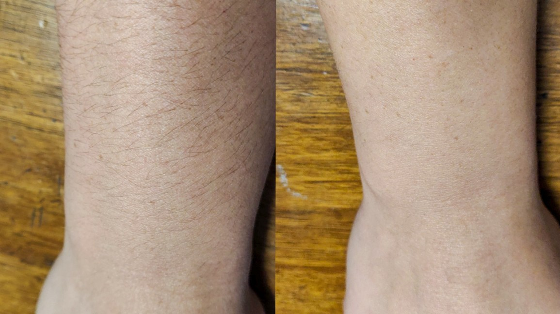 Shaving Arms Pros Cons Side Effects And How To Do It Properly