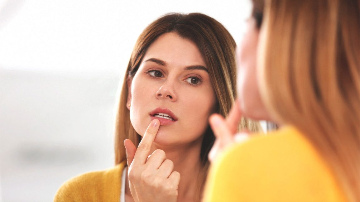 How to Get Rid of a Cold Sore Fast: Treatments and Home Remedies