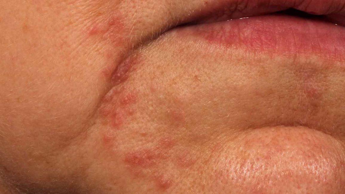 dermatite perioral, face