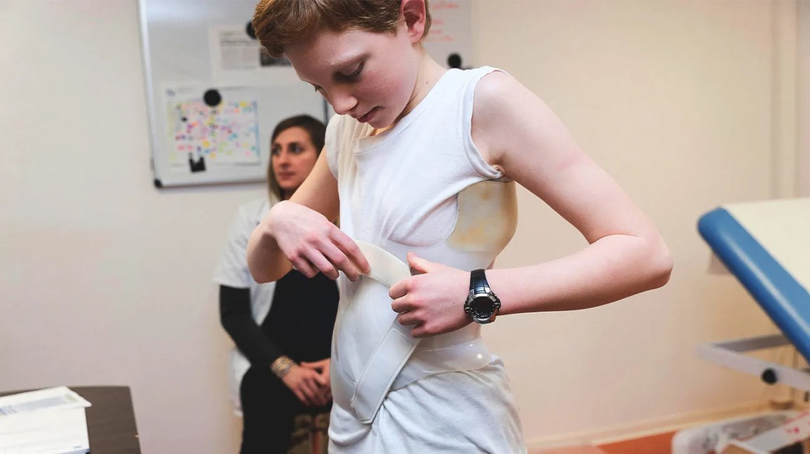 A scoliosis brace is a medical device used in children and adolescents with scoliosis.