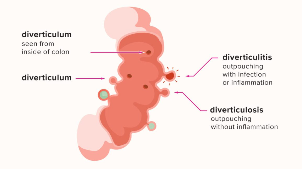 An illustration showing infection and inflammation in the diverticulum, which causes diverticulitis.