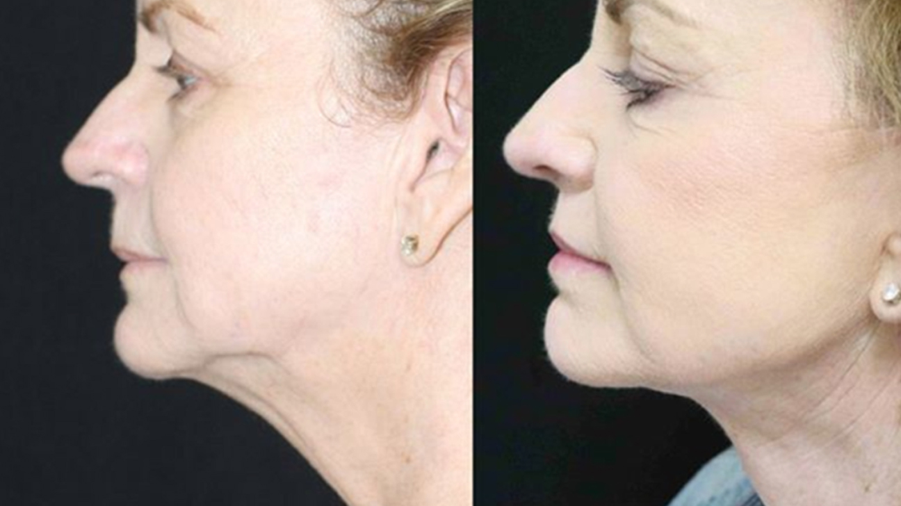 Fat under the chin removal