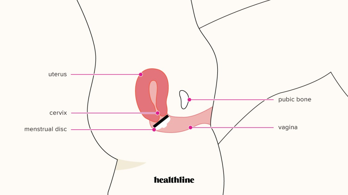 medical illustration showing where a menstrual disc fits in the vagina