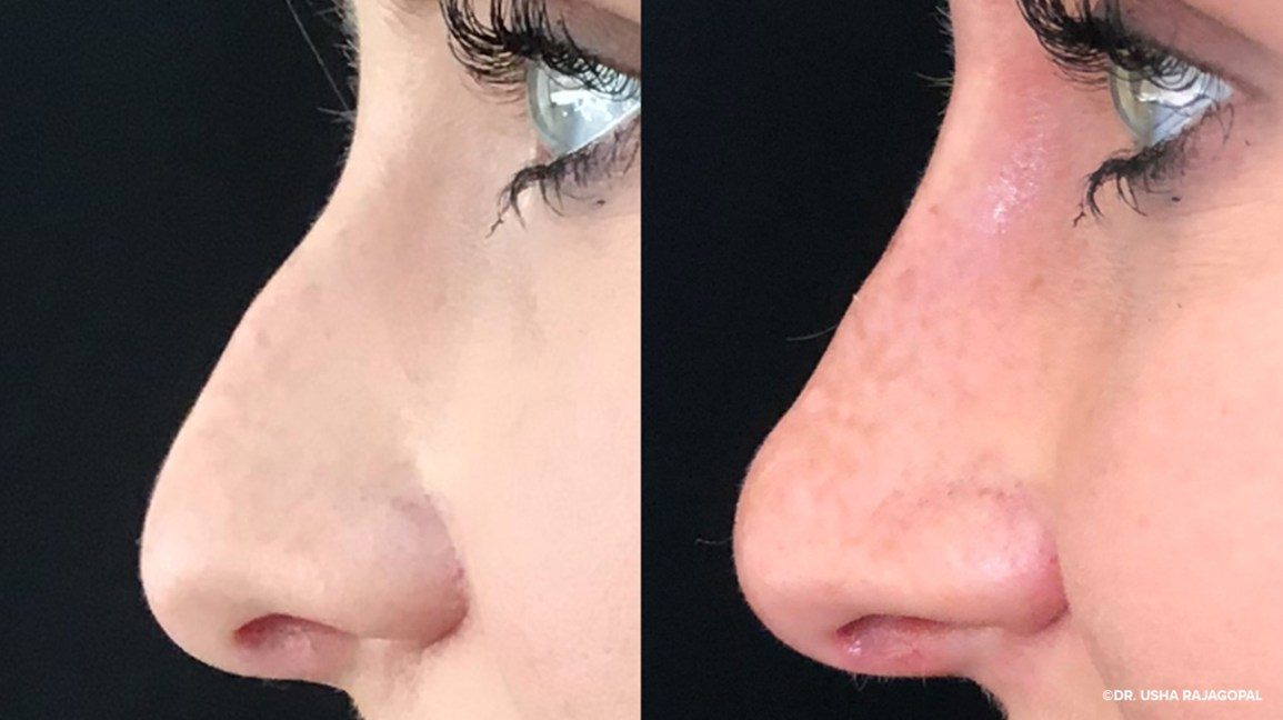 Nonsurgical Rhinoplasty What To Expect Cost Recovery And More