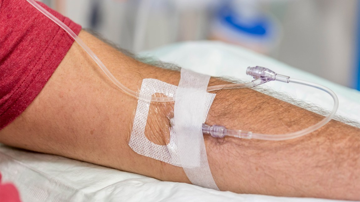 arm with IV inserted for infusion