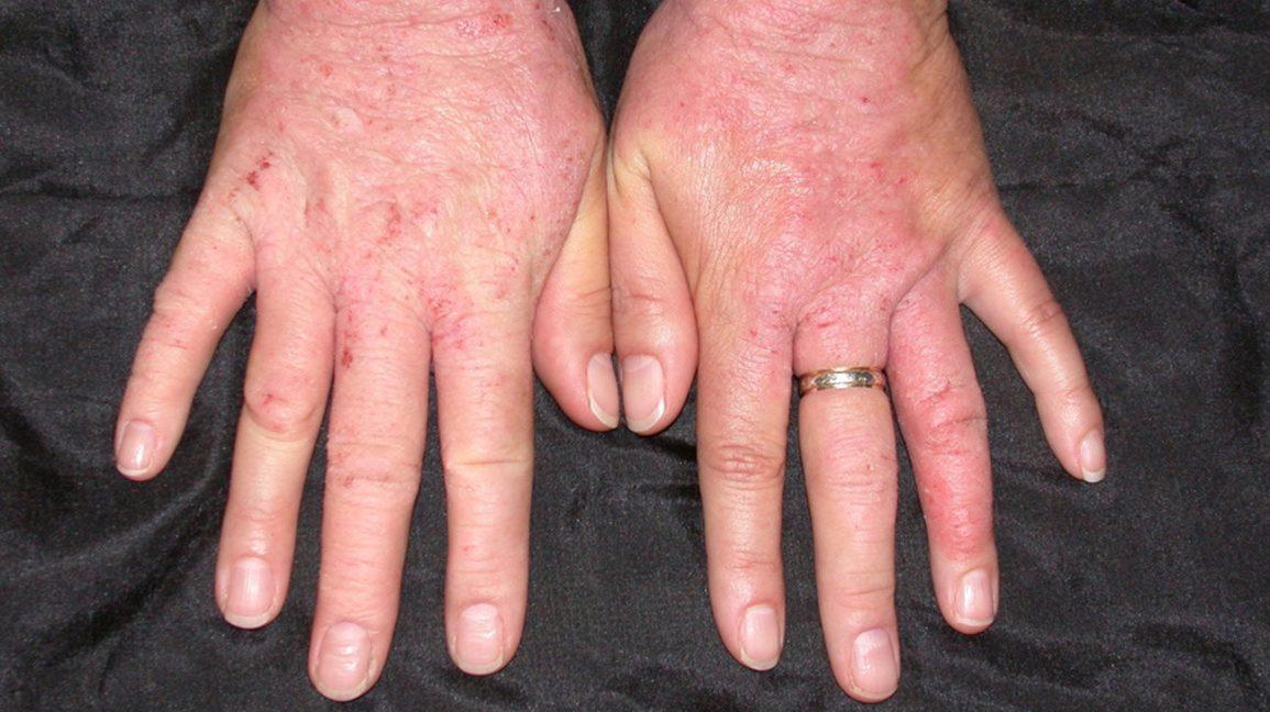 anemia yellow skin condilom pe uretra