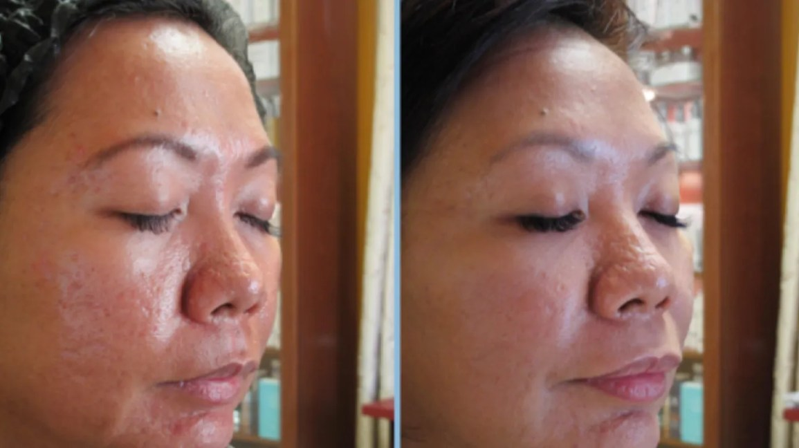 Vampire Facelift Procedure Cost Safety And More