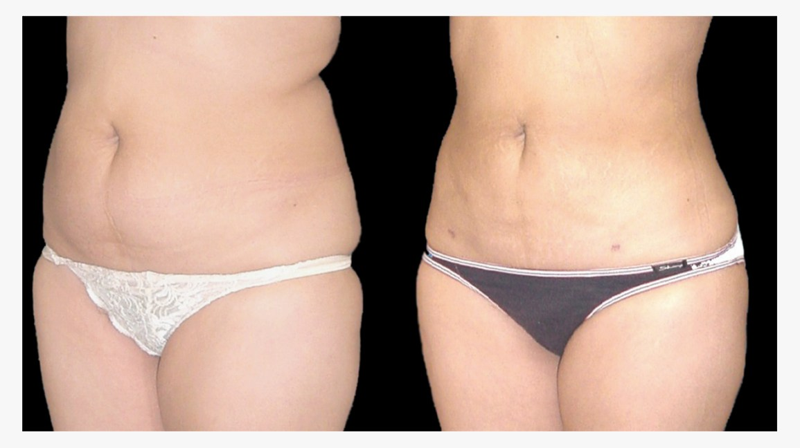 Liposuction Scars How To Treat And Minimize Them