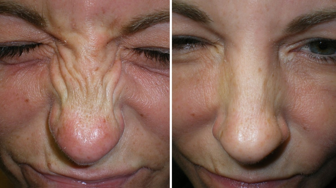Bunny Lines Can Botox Reduce The Appearance