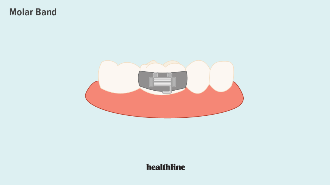 Molar band illustration