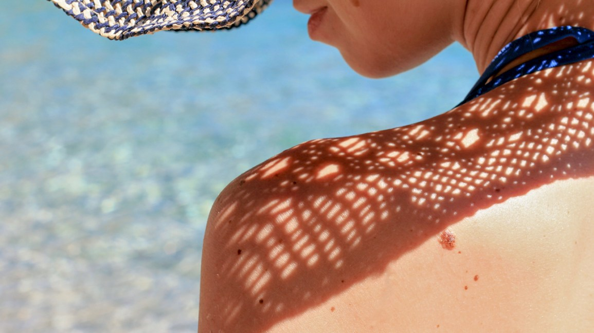 A woman with moles and dark spots on her bare skin sits in the sun with a hat that shades her face,