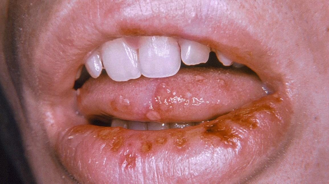 mouth does what look does like herpes