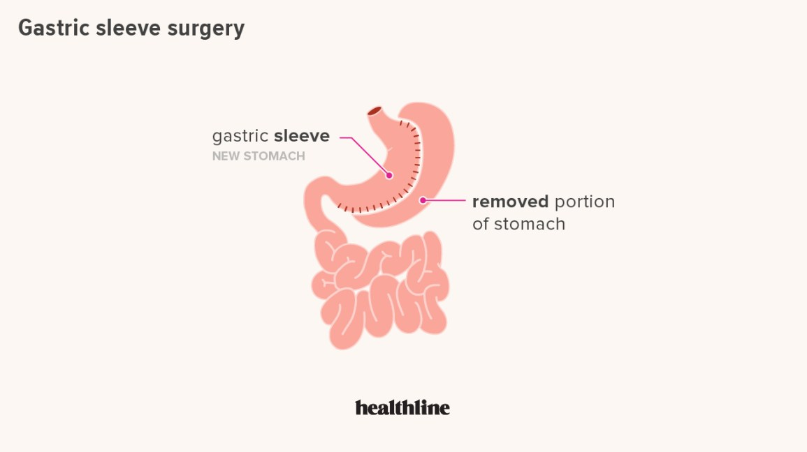 cancer after gastric sleeve